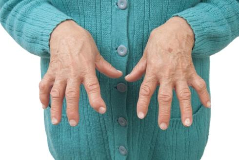 rheumatoid-arthritis.jpeg