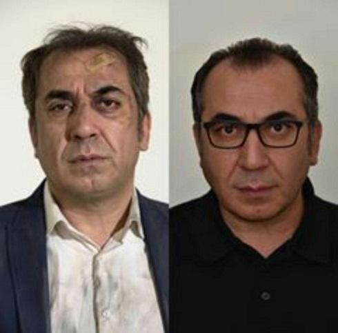 چهره کتک خورده و زخمی سیامک انصاری در ساعت۵عصر