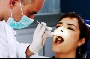 یافته های محققان درباره ارتباط ریزش مو با خرابی دندان ها!