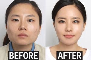 جراحی زیبایی ، هدیه فارغ التحصیلی دانشجویان کره جنوبی