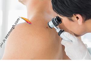 سرطان پوست و هر آنچه باید در مورد سرطان پوست بدانید
