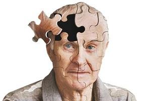 علایم اولیه هشدار دهنده آلزایمر