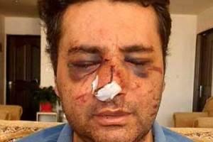 بازداشت عاملان ضرب و شتم پزشک پیرانشهری