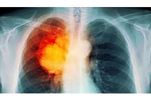 مهم ترین عوامل در ایجاد سرطان ریه