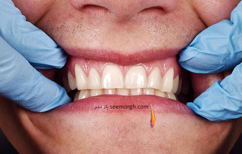 مزاياي مسواک برقي: دندان هايتان را سفيد نگه مي دارد.