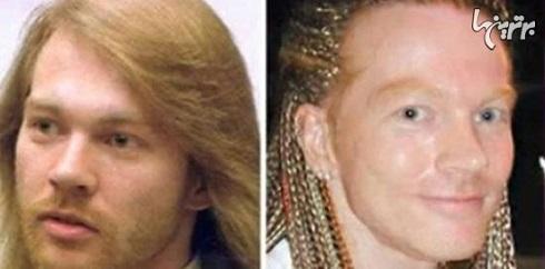 عکس اکسل رز قبل و بعد از عمل جراحی زیبایی