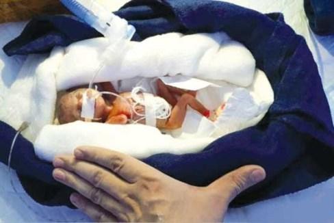 کم وزن ترین نوزاد جهان