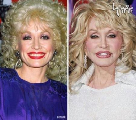 دالی پارتن قبل و بعد از عمل جراحی زیبایی