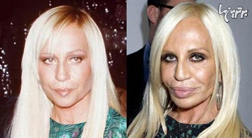 دناتلا ورساچه قبل و بعد از عمل جراحی زیبایی
