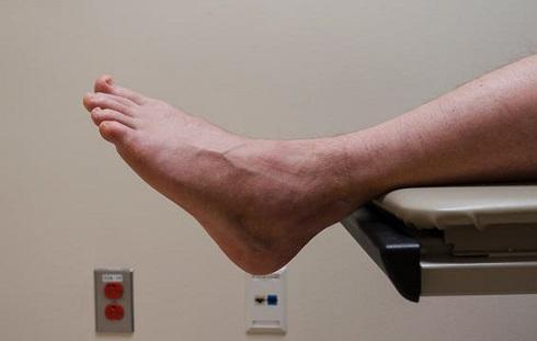 افزایش هورمون تستوسترون ممکن است جلو و ساق پا را متورم کند