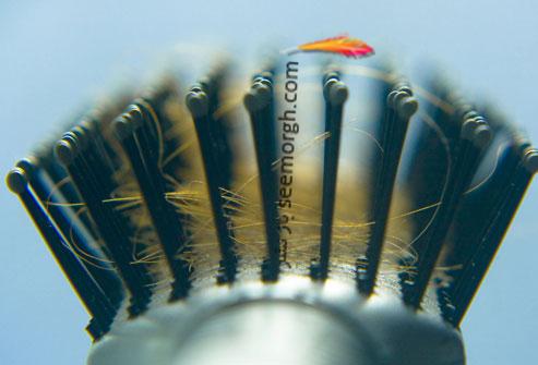 علت اصلی ریزش مو چیست و برای جلوگیری از ریزش مو چه کنیم؟