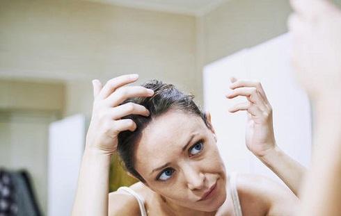 6. ممکن است شوره سر را تشدید کند