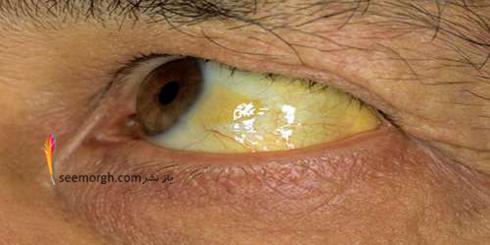 چشم ها در مورد سلامت شما چه مي گويند؟