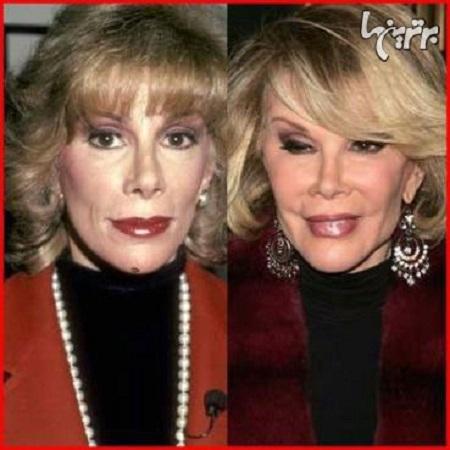 جون ریورز قبل و بعد از عمل جراحی زیبایی