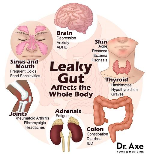 10 علائم داشتن روده چکه کن  Leaky Gut