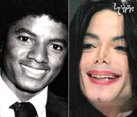 مایکل جکسون قبل و بعد از عمل جراحی زیبایی