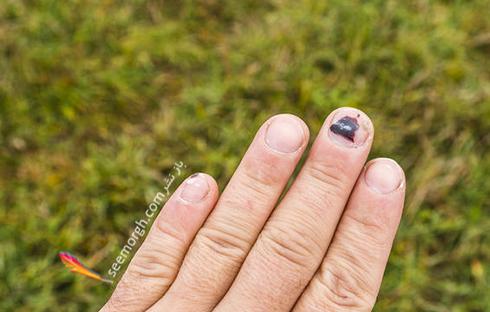8 واقعیت که ناخن ها در مورد سلامت شما بیان می کنند