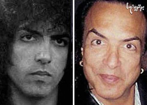 پل استنلی قبل و بعد از عمل جراحی زیبایی