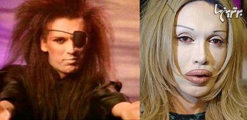 پیت برنز قبل و بعد از عمل جراحی زیبایی