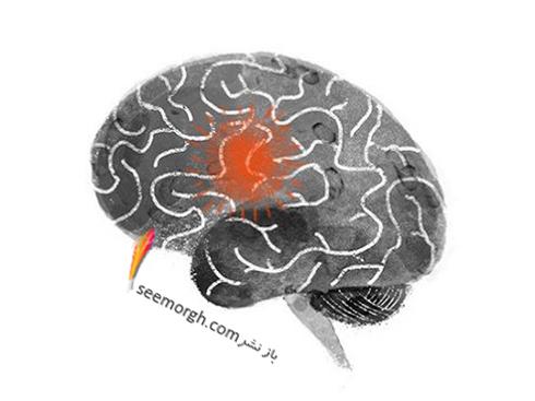 نشانه های سکته مغزی که نباید نادیده گرفته شوند