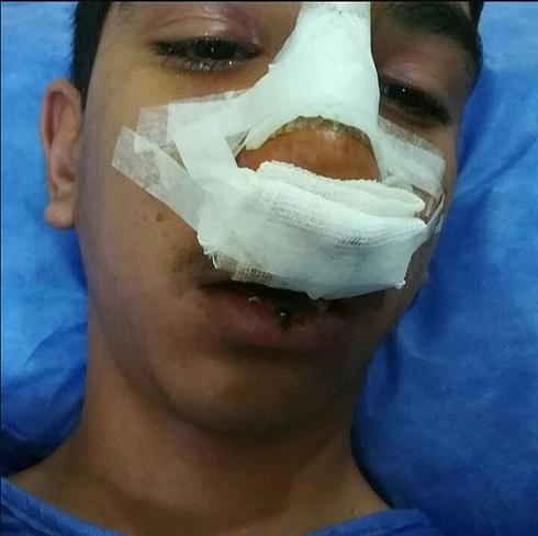 دانش آموز جيرفتي را مديرش طوري کتک زد که لبش پاره شد