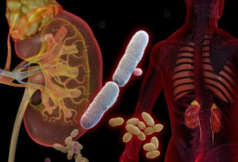 مهم ترین علت های عفونت ادراری چیست و چه باید کرد؟