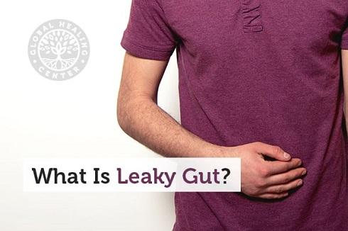 روده چکه کن Leaky Gut چیست؟