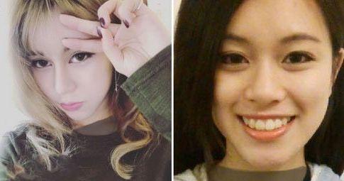 چهره دختر جوان قبل و بعد از جراحی های زیبایی