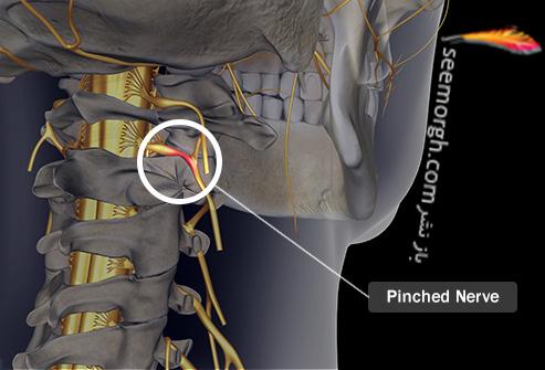 درد قفسه سینه و علت های عجیب آن فشار به عصب