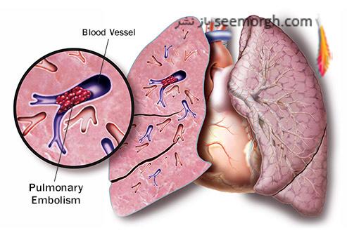 درد قفسه سینه و علت های عجیب آن آمبولی ریه