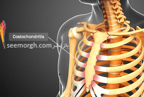 درد قفسه سینه و علت های عجیب آن کوستوکندریت