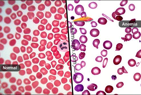 کم خونی,گلبول های خون
