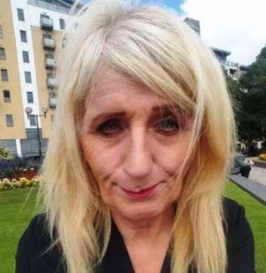 جوان شدن دیدنی زن ۵۷ ساله با جراحی زیبایی! عکس