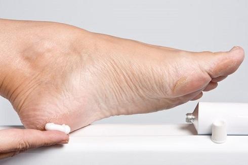 علت خشکی کف پا یکی از این بیماری هاست
