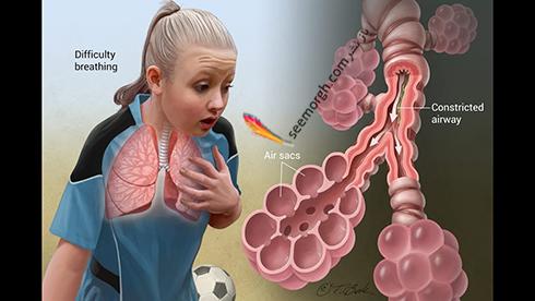 روز جهانی آسم 11 اردیبهشت + بیماری آسم را بشناسید