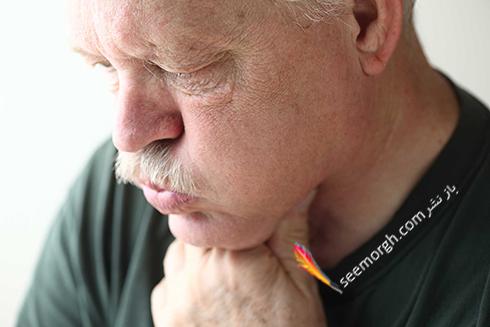 علت سکسکه طولانی : رفلاکس معده