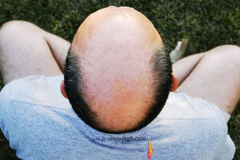 کشف درمان جدید ریزش مو توسط دانشمندان