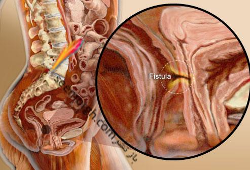 بیماری التهابی روده IBD چیست و چه تفاوتی با IBS دارد؟