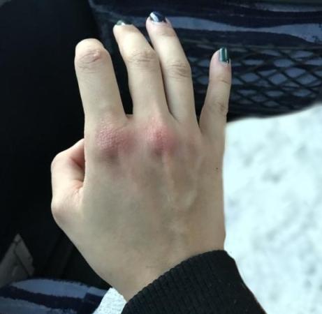 دست ضرب دیده این زن پس از ضربه شدید