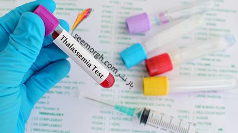 روز جهانی تالاسمی 18 ادیبهشت + بیماری تالاسمی چیست؟