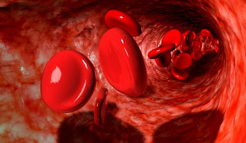 گند خونی یا گندیدن خون چیست؟