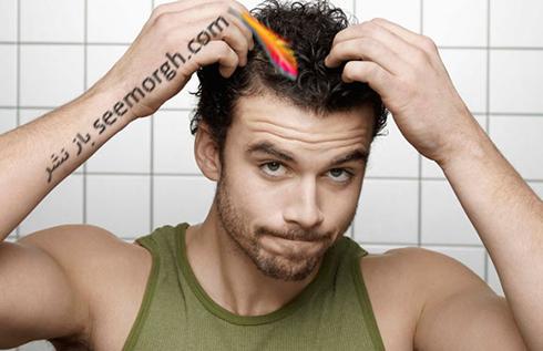 کاشت مو,کاشت مو به روش SUT,ریزش مو