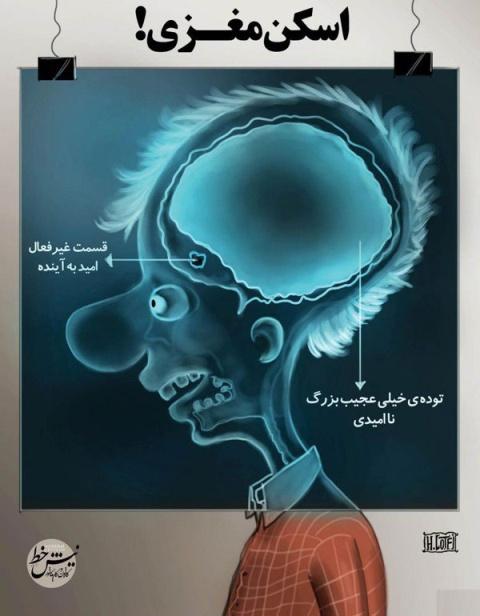 اسکن مغزی مردم ایران