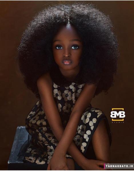 زیباترین کودک دنیا با چشمانی خاص
