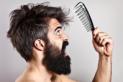 ریزش مو,ریزش مو در مردان