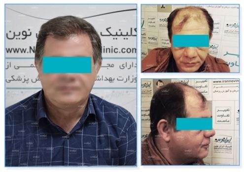 کلینیک تخصصی پوست و مو ایران نوین