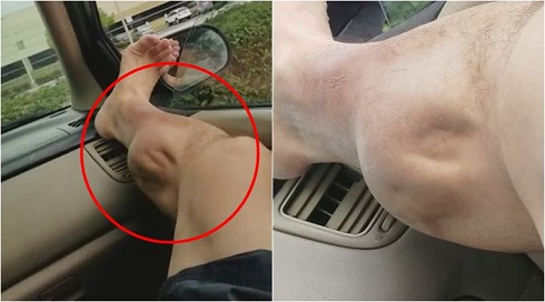 گرفتگی عضلات,عضله پا,گرفتگی عضله