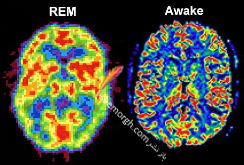 تفاوت مغز خواب و بیدار