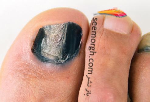 سیاه شدن ناخن پا,ناخن پا