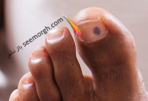 لکه روی ناخن پا,ناخن پا
